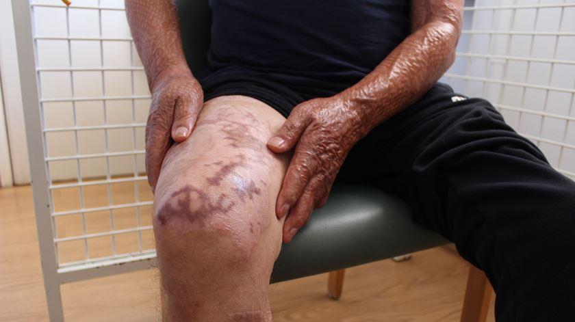 Carlos Conceição fez vários enxertos com pele das pernas. Foto: Liliana Carona/RR